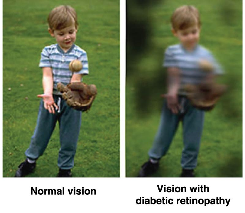 Image-1—Normal-Vision-and-Vision-with-diabetic-retinopathy
